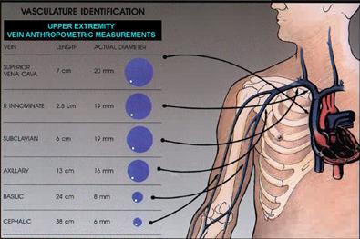 bard : accessability device selection programme, Cephalic vein